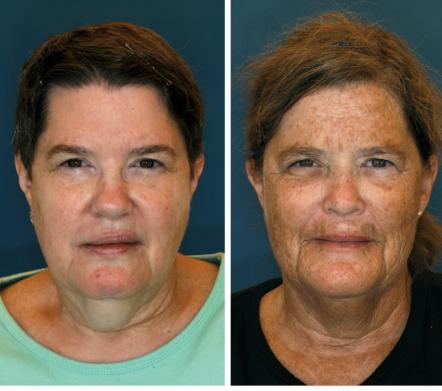 Сестрам на фото 61 год. Но, как подсчитали исследователи, визуальная разница между ними составляет 11,25 года. Женщина справа проводила на солнце 10 часов в неделю и больше