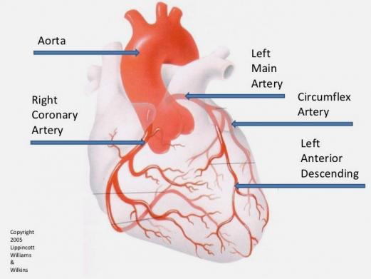 Артерии, в которых ищут кальций: RCD, LMA, CA, LAD. В моем случае кальций обнаружился в левой нисходящей артерии (LAD), которая еще носит страшное название widow maker – из-за того, что слишком часто ее повреждение у мужей делает жен вдовами.